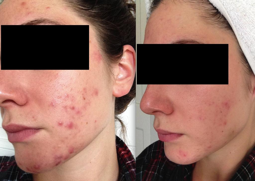 cystic acne after skincare routine