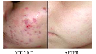 before after exposed acne review